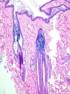 Dermatosis atrófica (Alopecia Cíclica)