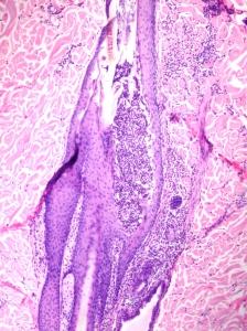 Dermatitis periadnexal-Foliculitis (Foliculitis bacteriana)