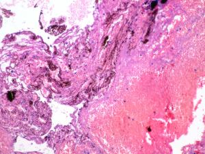 Correspondencia histológica: hematoma subcutáneo