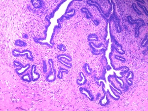 Hiperplasia Fibroepitelial Mamaria Felina