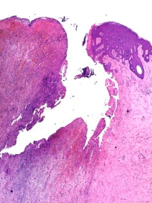 Inflamación flegmonosa