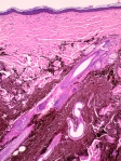 MelanocitomaDermico