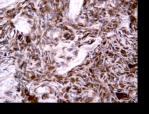 COX2; melanoma