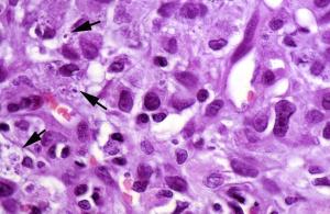 Correspondencia histológica: reacción granulomatosa de cuerpo extraño