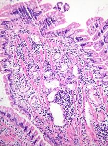 Enteritis Linfoplasmacítica Felina