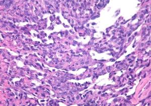 Hemangiosarcoma