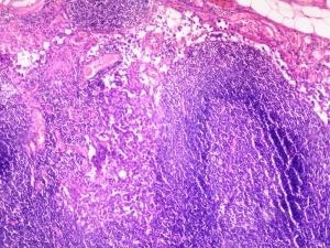 Hiperplasia folicular