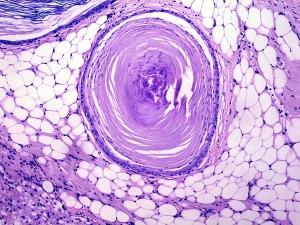 Teratoma en ovario. Perro. Tejido adiposo y tejido epidérmico con diferenciación córnea