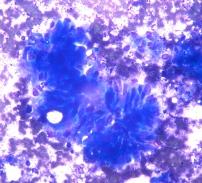 Carcinoma colorectal. Anisocariosis