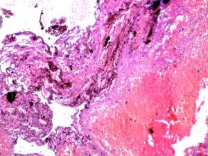 Hemorragia subcutánea