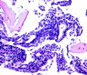 Metástasis de adenocarcinoma apocrino al hueso