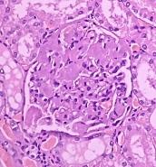Amiloidosis glomerular. Tinción de rutina