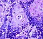 Carcinoma de célulasescamosas
