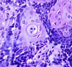 Basofília y eosinofília. Carcinoma de células escamosas