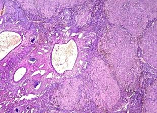 Fibrosis e hiperplasia compensatoria. Hepatitis crónica