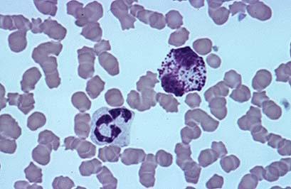 Polimorfonucleado basófilo