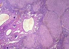 Hepatitis crónica. Fibrosis e hiperplasia compensatoria