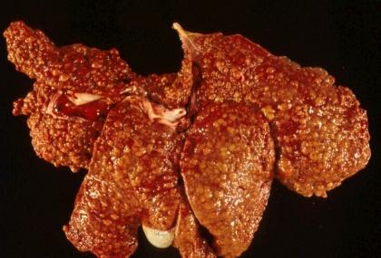 Hepatitis crónica